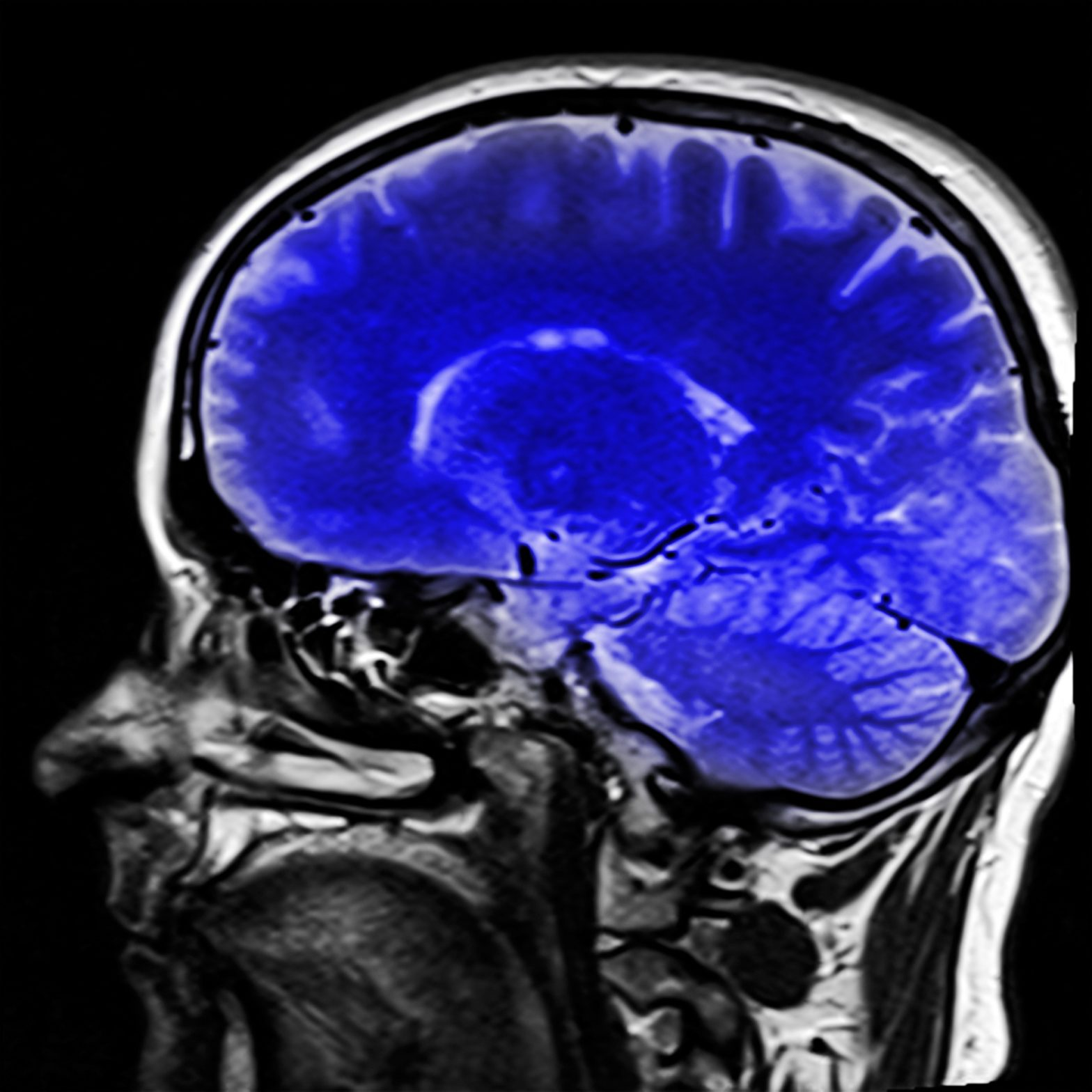 The Addicted Brain